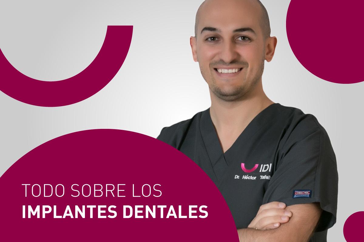 Todo sobre los implantes dentales